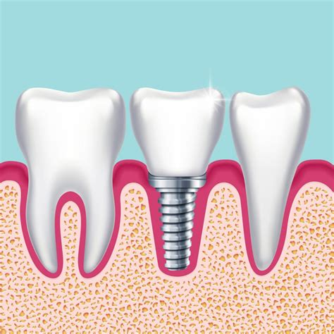 comfort dental implants comfort dental implants 28 images 5 warning signs you