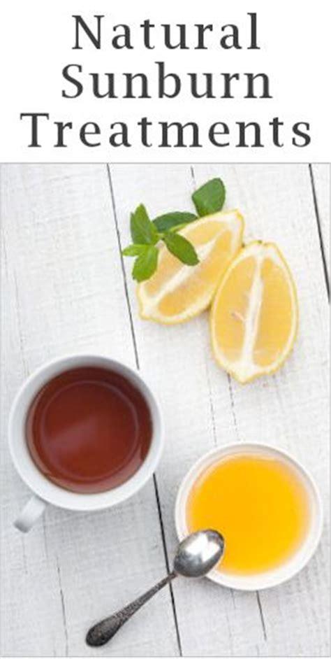 sunburn relief remedies and sunburn treatment on