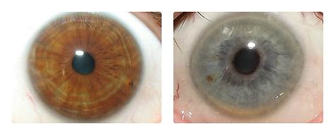 Iridology Detox by Iridology Assessments Windows To Your Health
