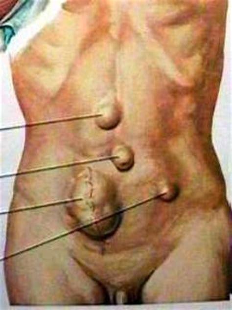 ernia addominale interna hernias de pared abdominal