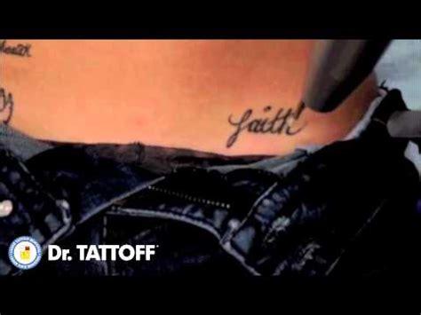 tattoo removal faith tattoo erased  hip  laser tattoo removal procedure  dallas