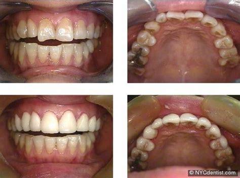 porcelain dental veneers can teeth gaps spaces