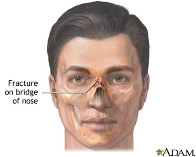broken nose diagram scripps health nose fracture