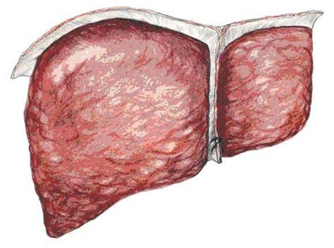 sintomi epatite alimentare dieta per fegato con epatite c epatitie c la dieta per
