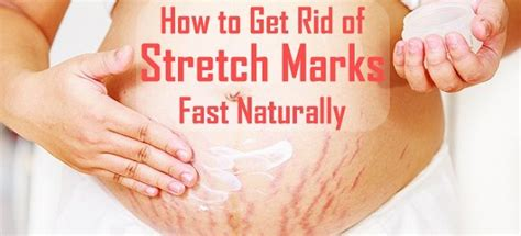 best 25 white stretch marks ideas on belly