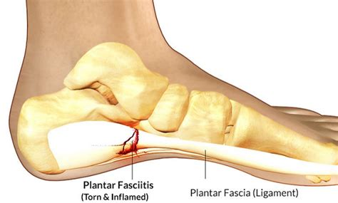 What Is Planter Fascitis by Plantar Fasciitis Treatment Stop Plantar Fascia For
