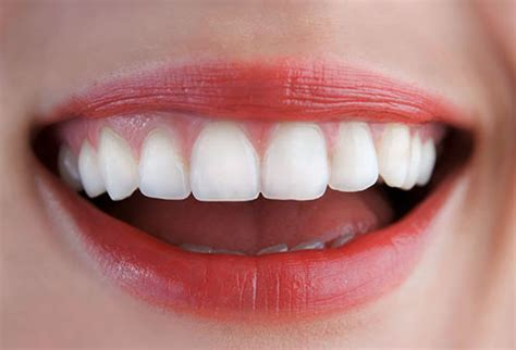 what color should gums be what your teeth and gums say about your health with pictures