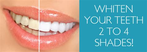 laser teeth whitening enfield beach house tanning