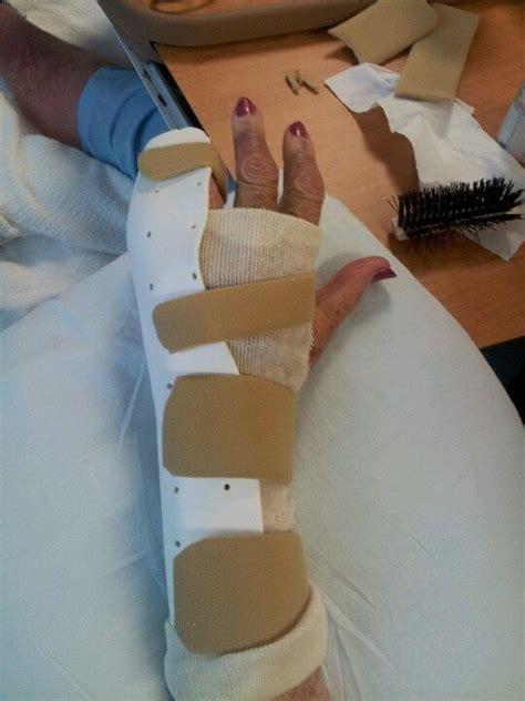 arm gutter splint ulnar radial gutter splint 5指基節骨骨折用 作成時の注意点 脳卒中にならないため