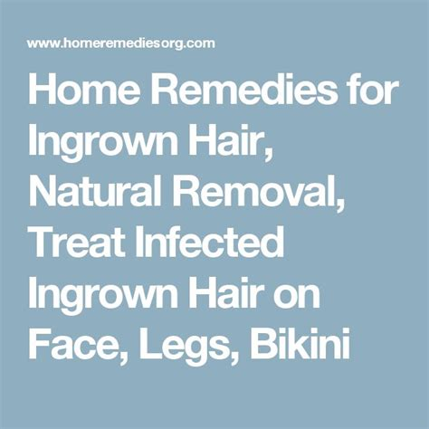 how to remove engrown hair onunderwear line 1000 ideas about ingrown hair remedies on pinterest