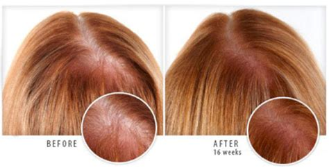 women hair loss before and after provillus natural hair provillus before and after women viviscal review 2016