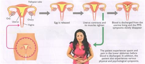 does endometriosis cause mood swings pre menstrual syndrome my gynae