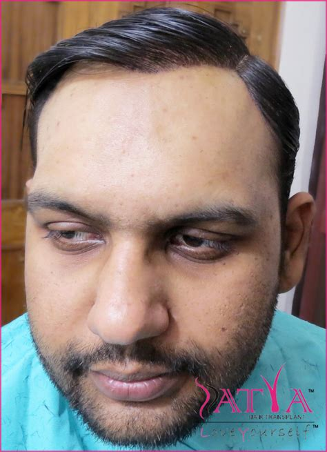 synthetic hair transplants synthetic hair transplant nido 9000 grafts