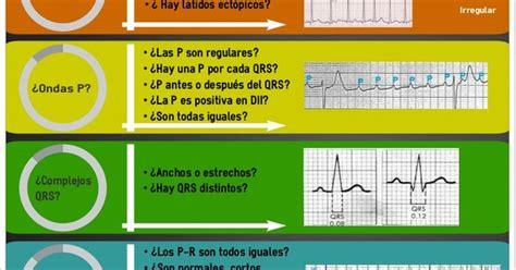 1591034892 ecg pocketcard esquema de interpretaci 243 n del electrocardiograma by elena