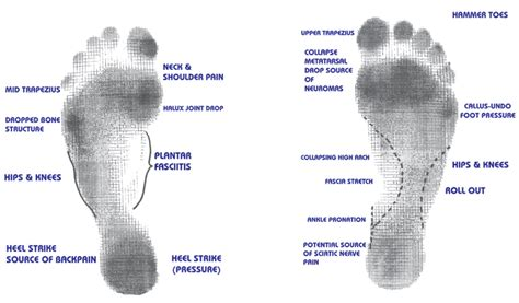Common Foot Problems by Podiatry Importance Of Footcare In Diabetics Common Foot