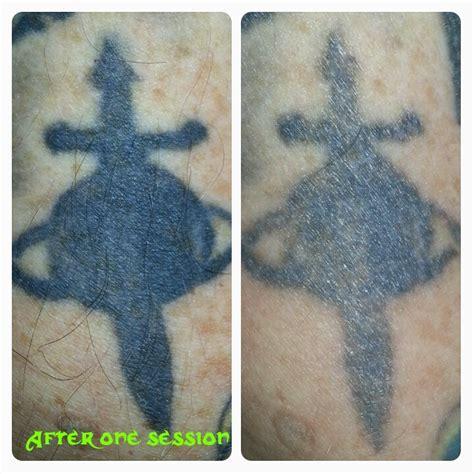 tattoo removal information shrink laser tattoo removal