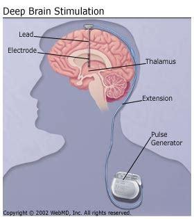 light therapy for parkinson s brain stimulation for parkinson s disease patients