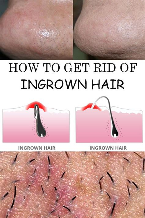 How To Treat An Ingrown Hair On Chin | how to get rid of ingrown hair them an and awesome