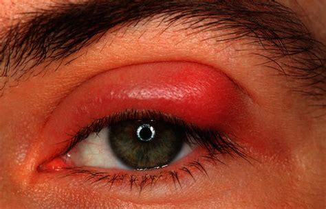 what corner does the st go on symptoms causes prevention eye sty cyst boil