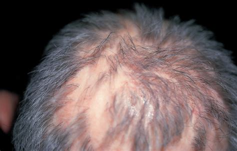 hair loss and itching image gallery scalp pruritus