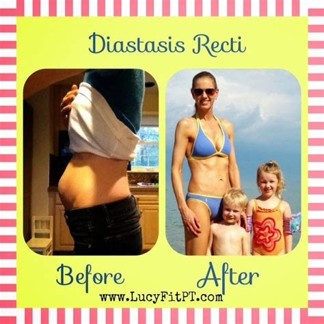 1000 ideas about diastasis recti exercises on diastasis recti mummy tummy and exercise