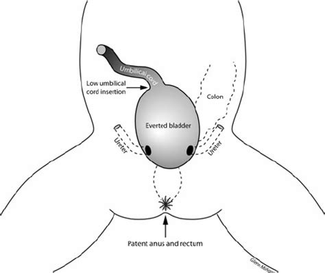 diagram bladder location diagram of the typical anatomical appearance of bladder