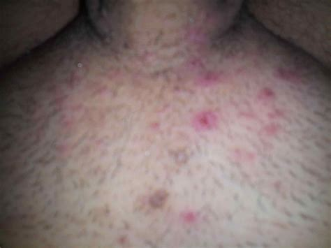 skin tag or ingrown hair on underwear line help hpv on groin doc said itus not or molluscum treated