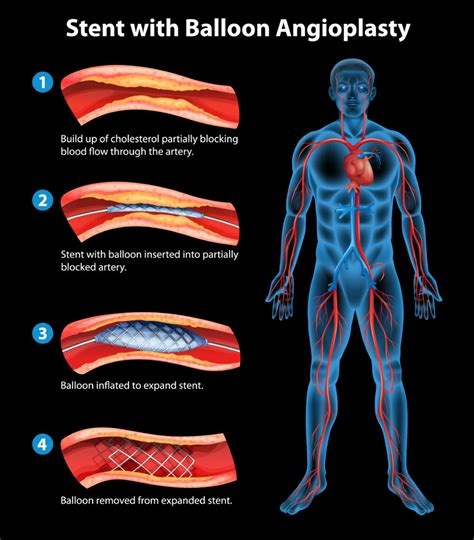 coronary angioplasty with or without stent implantation getting to the matter of heart disease bloke health