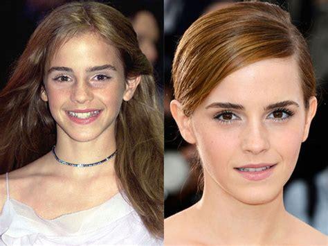 emma watson job emma watson nose job plastic surgery before and after
