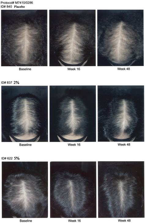 female pattern hair loss minoxidil a randomized placebo controlled trial of 5 and 2