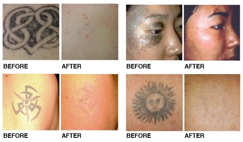yag laser tattoo removal before and after laser removal northwest aesthetics