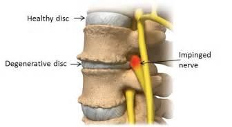 degenerative disc disease and lower back