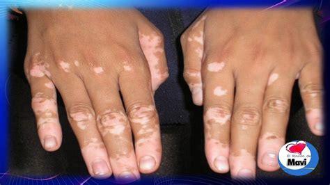 imagenes de michas blancas 191 que es el vitiligo o leucoderma causas sintomas y
