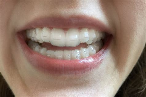 imagenes reales invisalign pros and cons of invisalign popsugar beauty