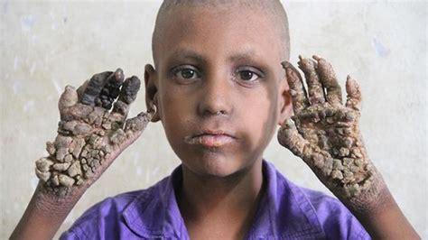 Obat Kutil Nasa tubuh dipenuhi kutil bocah malang ini dijuluki manusia