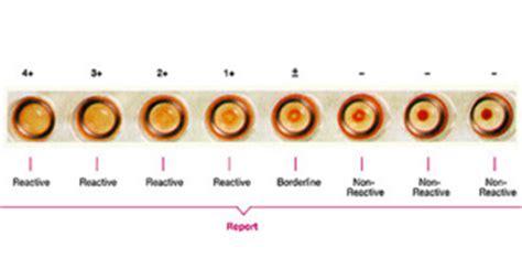 doom 3 codici armadietti tpha test 28 images tpha principle procedure results