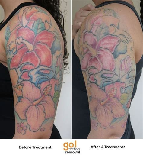 half sleeve tattoo removal 946 best removal in progress images on