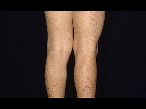 creatine rash طريقة فعالة لعلاج حب الشباب والتخلص من حبوب البشرة بالجسم