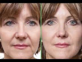 haircuts hide jowls hairstyles for older women with jowls short hairstyle 2013