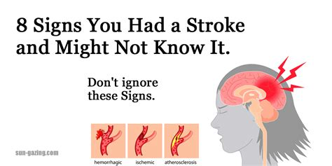 signs your had a stroke 8 signs you had a stroke and might not it don t ignore these signs