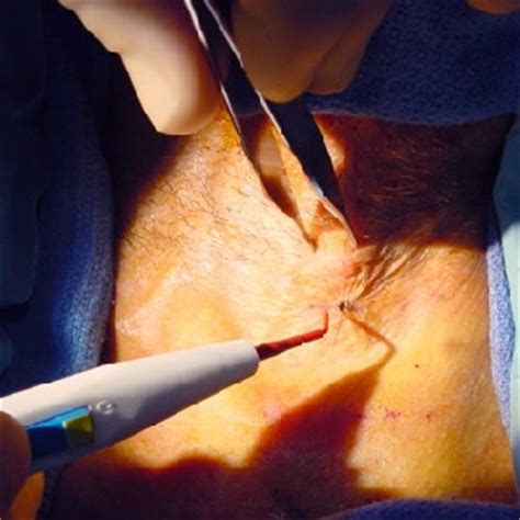 horizontal incision c section surgical pictures of tracheostomy otolaryngology houston