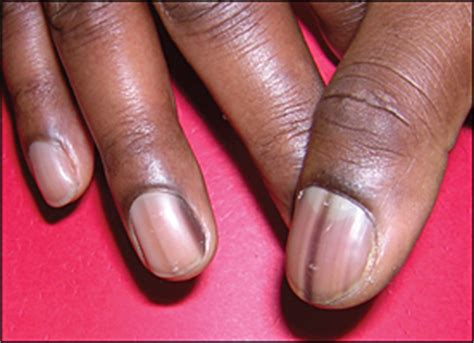 dark nail beds evaluation of nail abnormalities american family physician