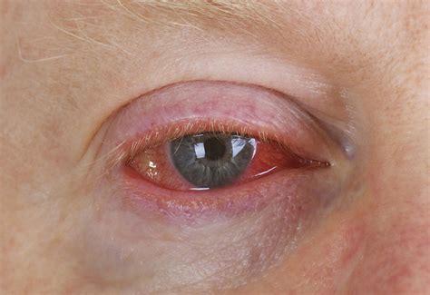 pink eye viral conjunctivitis panoptes