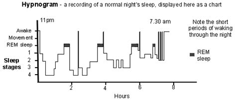 normal sleep pattern 2 year old insomnia poor sleep causes and treatments patient