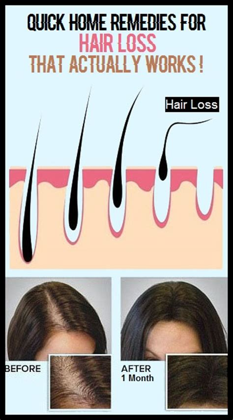 hair loss home remedies 8 exercises that disappears stretch marks on thighs stomach style vast