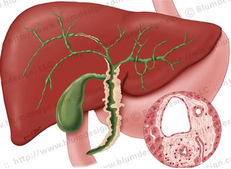 Sauna Detox For Primary Biliary Cirrhosis by What Is Primary Biliary Cirrhosis Cirrhosis Has Many
