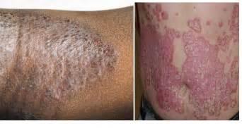 Obat Minum Herpes obat penyakit kulit gatal jerawat herpes eksim alergi