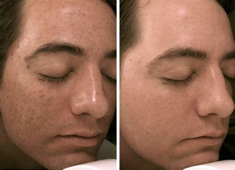 Micro Needling At Home by Suddenly Slimmer Spa Salon Weight Loss