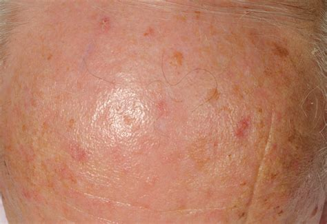 About My Skin Cancer by What Does Skin Cancer Look Like Car Interior Design