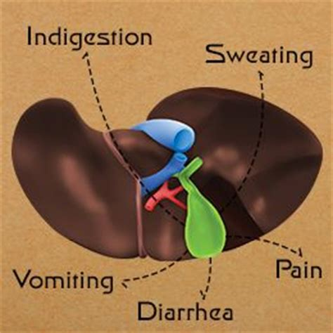 How To Detox Sludge From The Gallbladd by Sludge In Gallbladder Symptoms